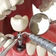 Что нужно знать об имплантации зубов