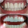 Наращивание зубов: кому это нужно