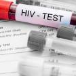 25 февраля  можно будет пройти анонимное тестирование на ВИЧ